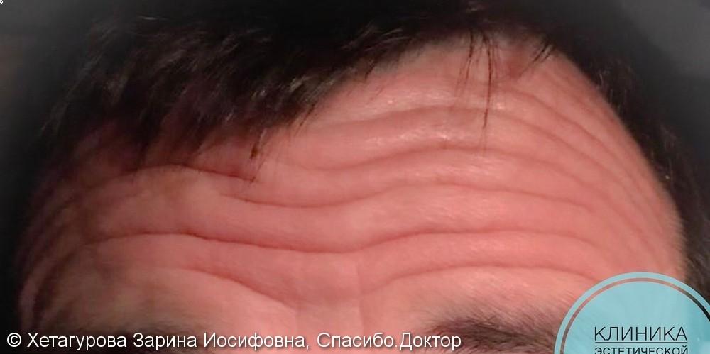 Результат ботулинотерапии лба у мужчин, фото до/после - фото №1