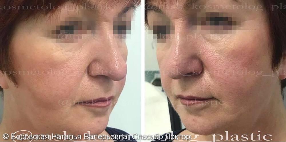 До и после процедуры контурной пластики средней трети лица филлером - фото №1