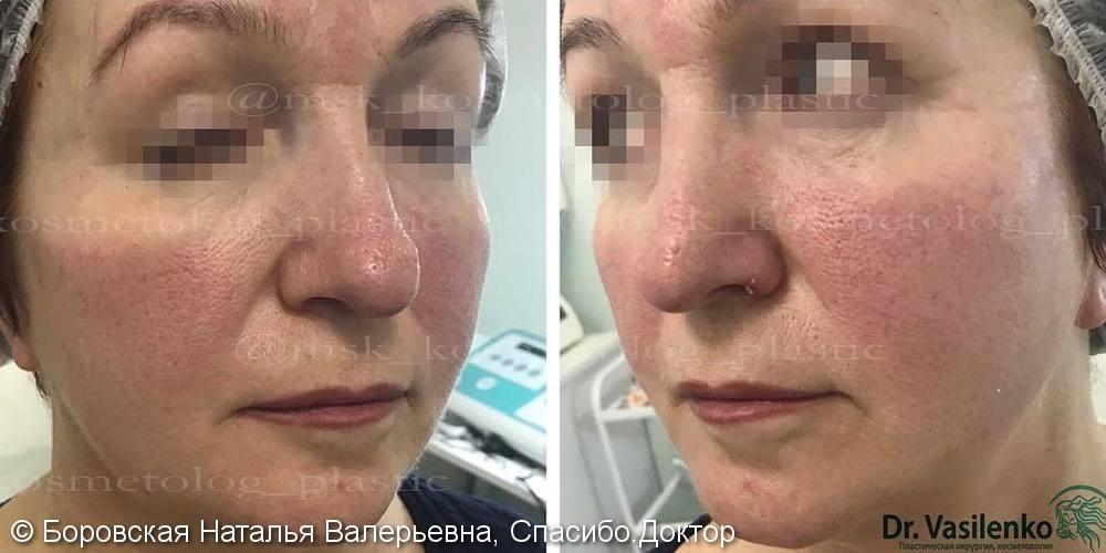 До и после процедуры контурной пластики средней трети лица филлером - фото №2