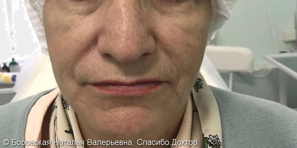Комплексная коррекция лица без операции с помощью филлеров - фото №1
