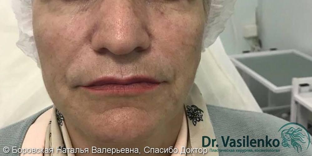 Комплексная коррекция лица без операции с помощью филлеров - фото №2