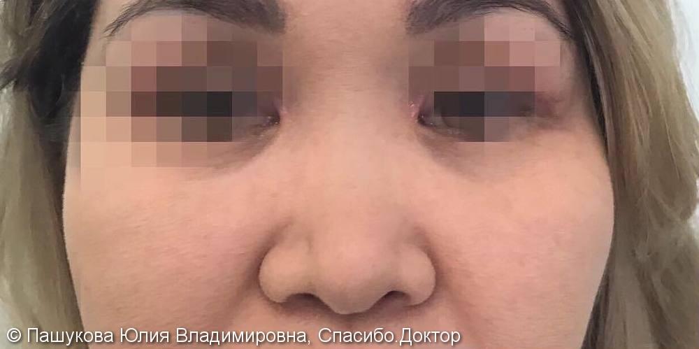 Безоперационная ринопластика, фото до/после результата - фото №1