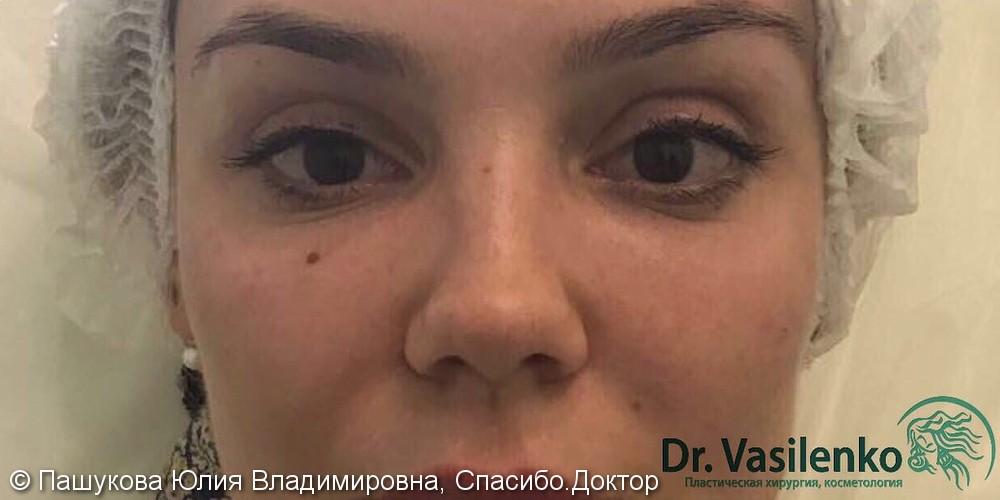 """Избавиться от вида """"усталых глаз"""", фото до и после - фото №2"""