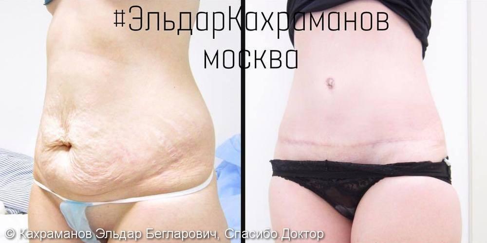 Полная абдоминопластика, фото до и после операции - фото №2