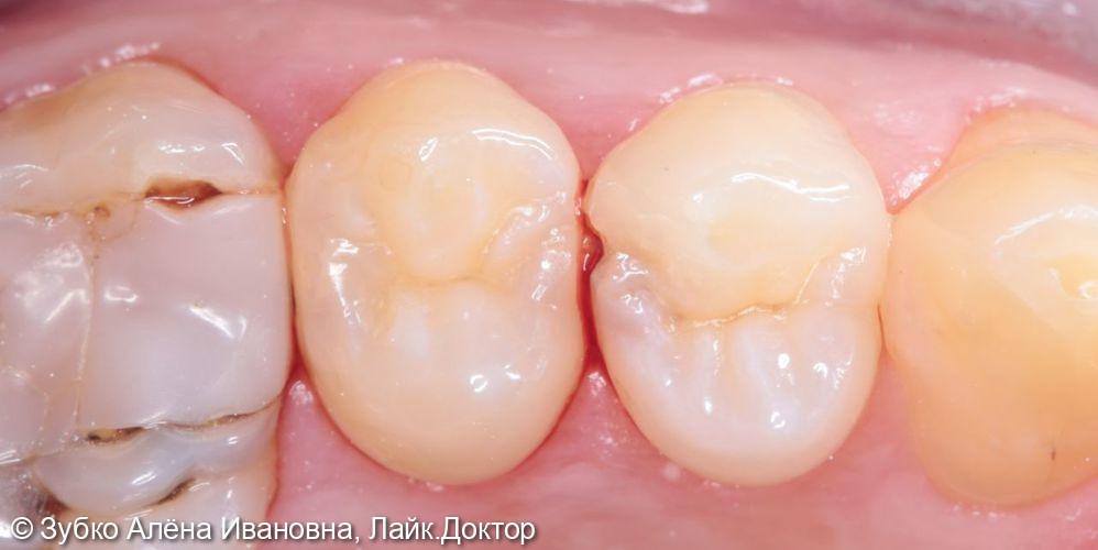 Лечение кариес 24 и 25го зуба - фото №1