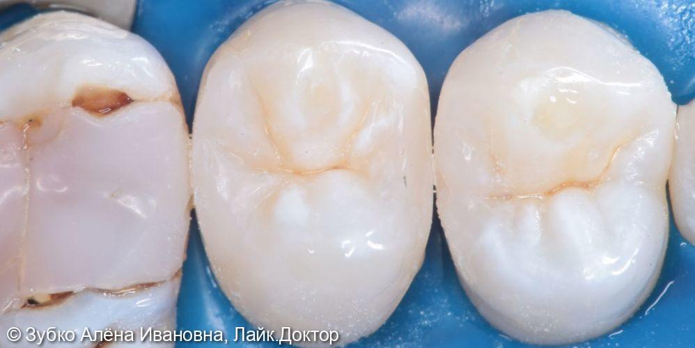 Лечение кариес 24 и 25го зуба - фото №5