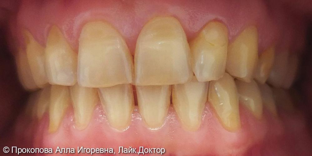Реставрация зубов. Установка керамических и композитных виниров - фото №1