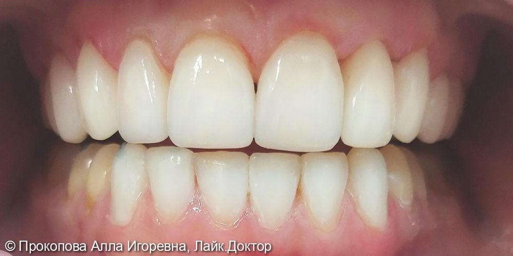 Реставрация зубов. Установка керамических и композитных виниров - фото №2