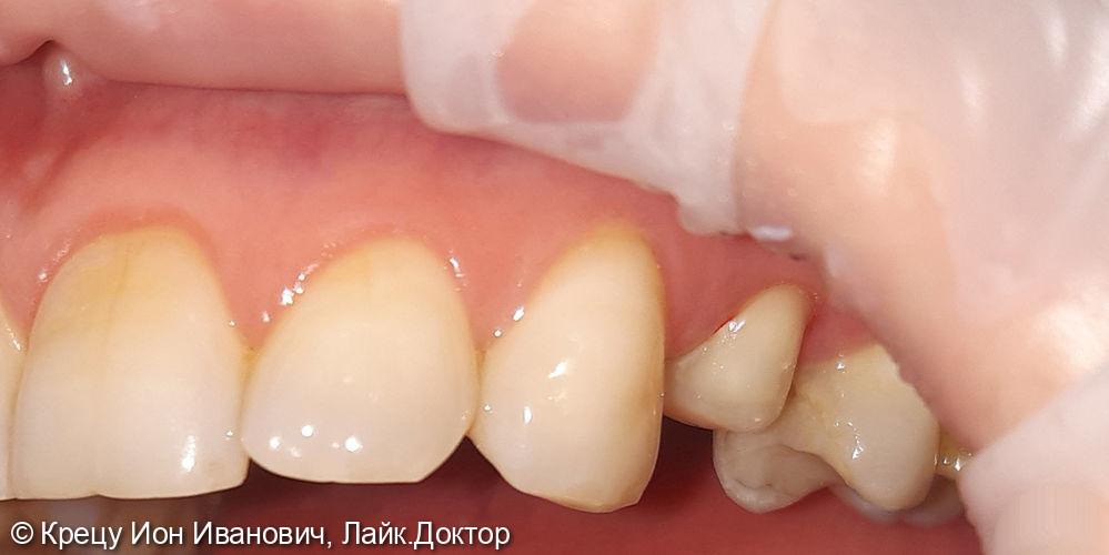 Восстановление зуба 2.4 металлокерамической коронкой - фото №1
