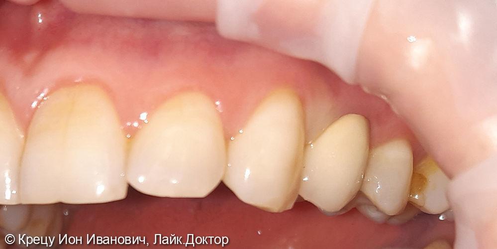 Восстановление зуба 2.4 металлокерамической коронкой - фото №2