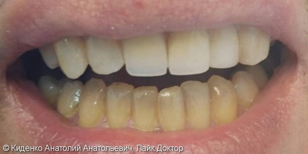 Протезирование двух передних зубов - фото №2