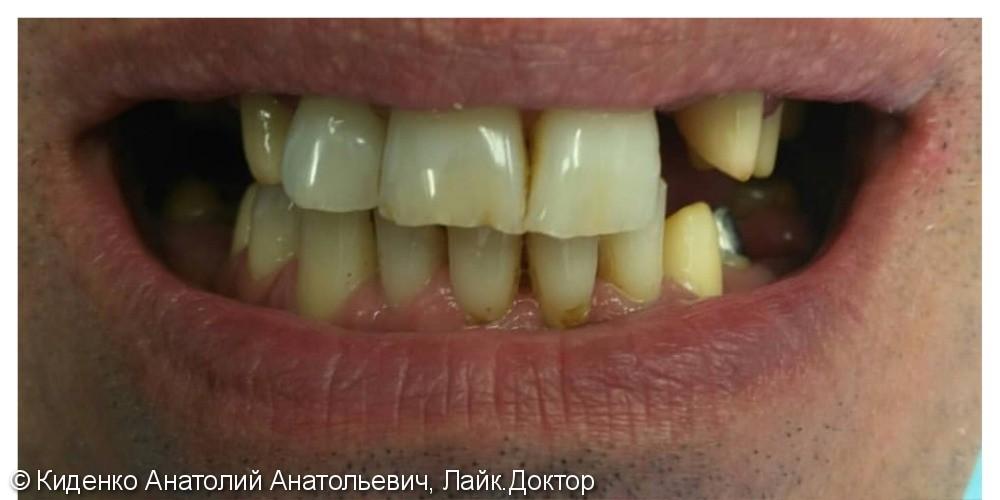 Протезирование зубов металлокерамическими мостовидными протезами - фото №1