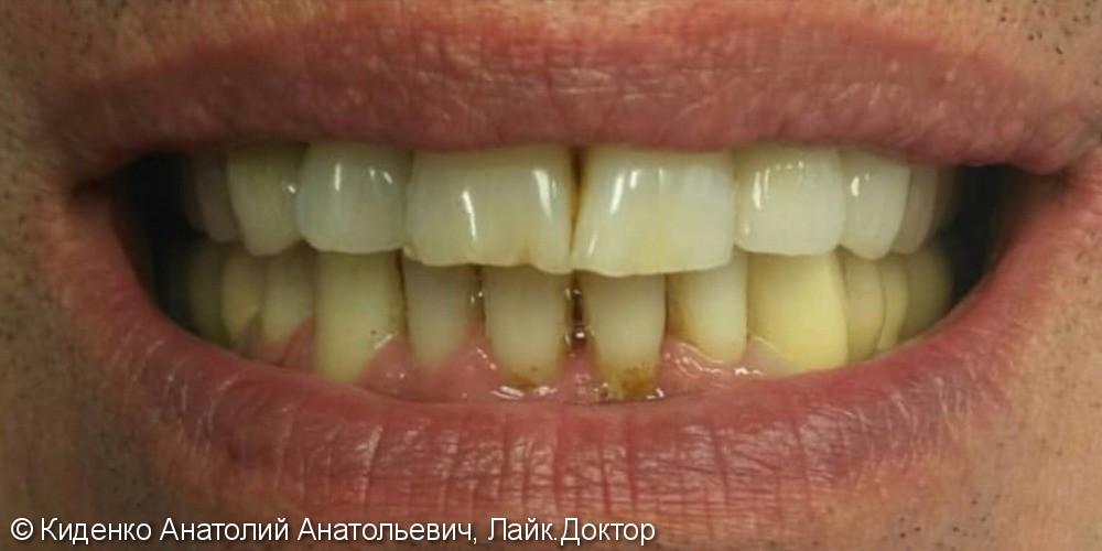 Протезирование зубов металлокерамическими мостовидными протезами - фото №2