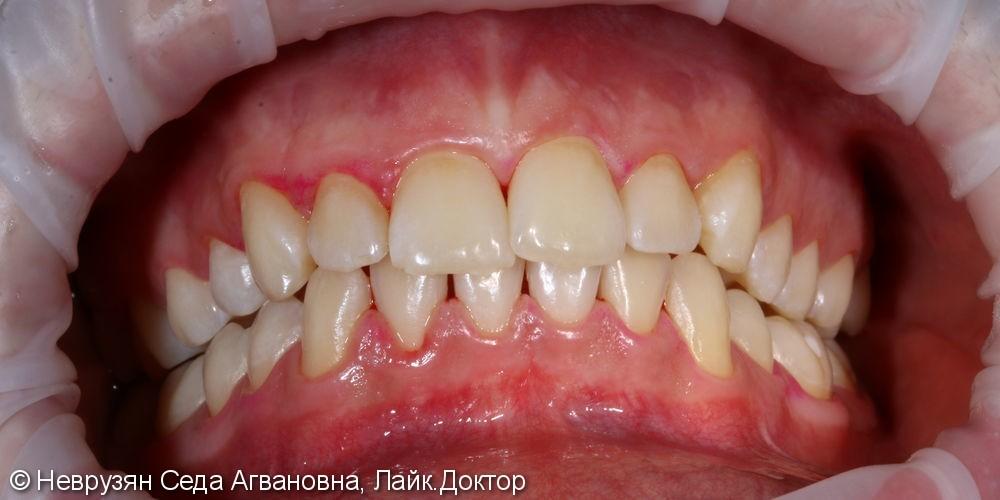 Красивая белоснежная улыбка. Профессиональная гигиена и клиническое отбеливание зубов. - фото №4