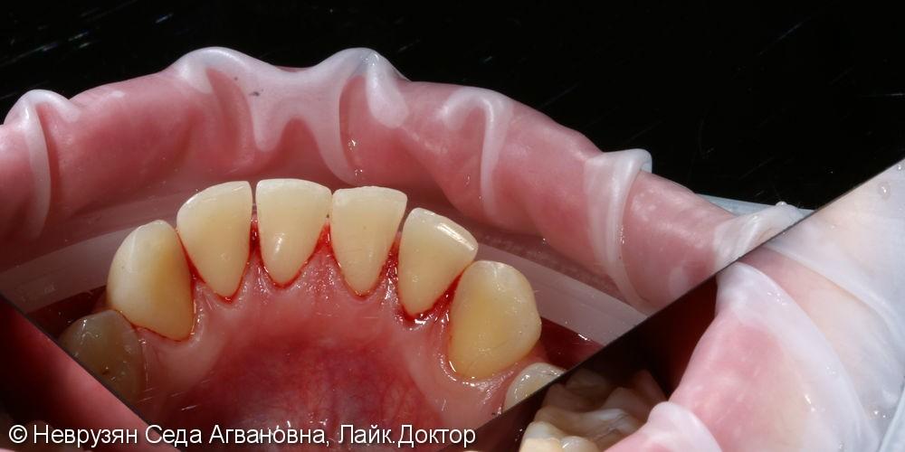 Красивая белоснежная улыбка. Профессиональная гигиена и клиническое отбеливание зубов. - фото №6