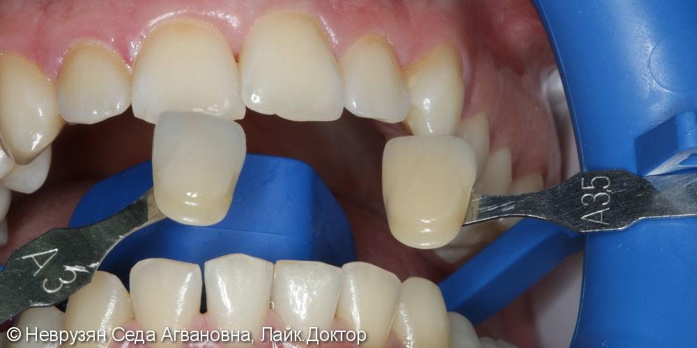 Красивая белоснежная улыбка. Профессиональная гигиена и клиническое отбеливание зубов. - фото №7