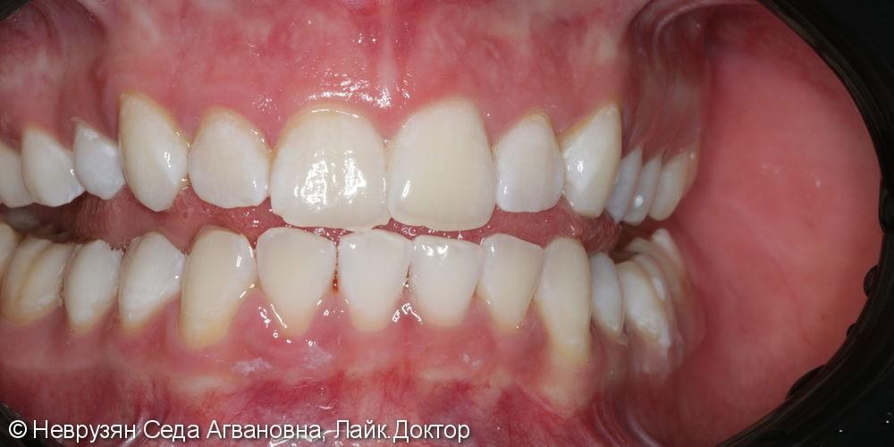 Красивая белоснежная улыбка. Профессиональная гигиена и клиническое отбеливание зубов. - фото №8