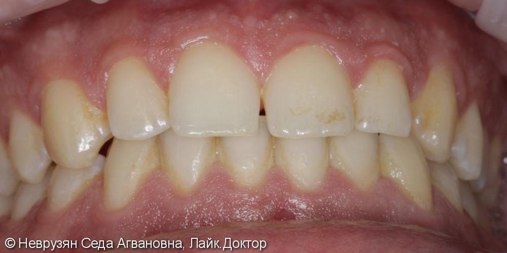 Профессиональная гигиена против коричневого налета на зубах - фото №1