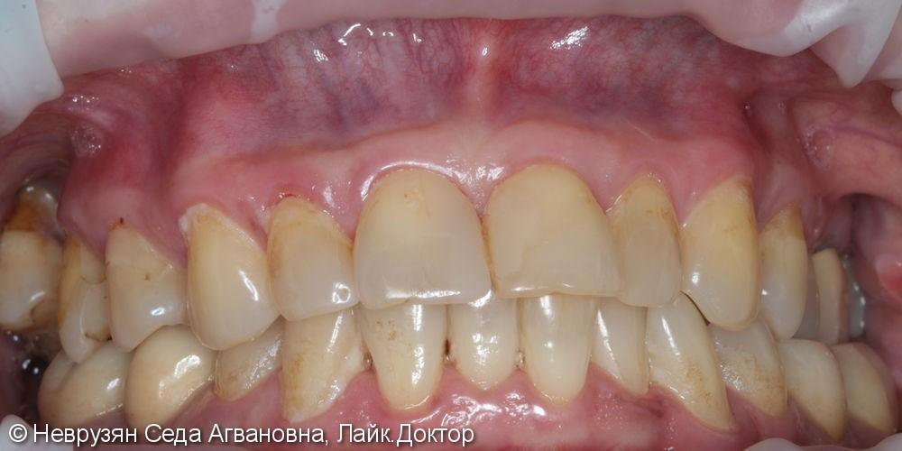 Профессиональная гигиена против коричневого налета на зубах - фото №2