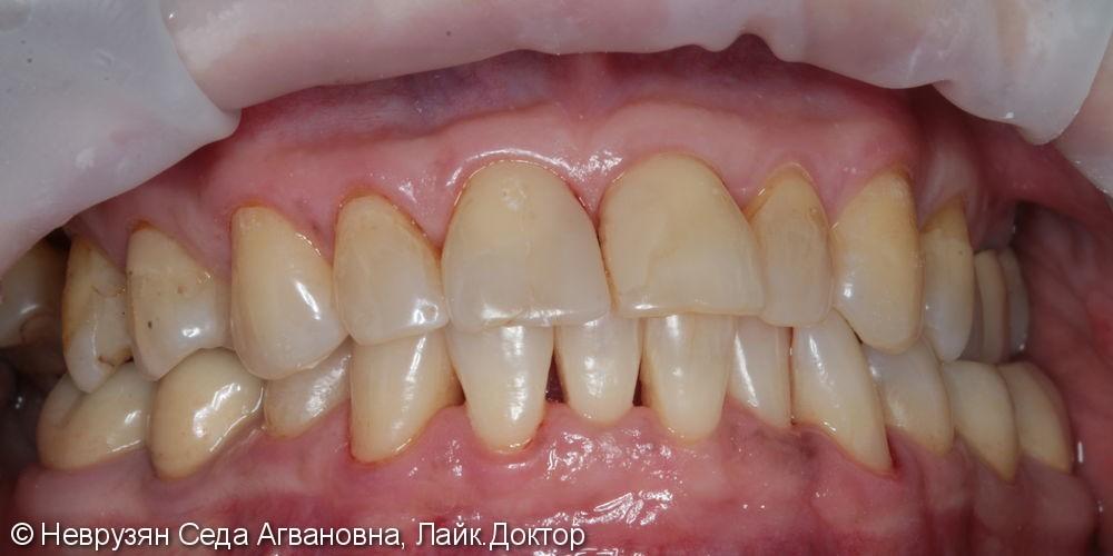 Профессиональная гигиена против коричневого налета на зубах - фото №3