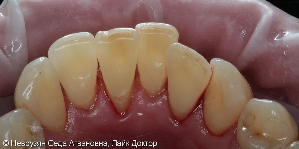 Профессиональная гигиена против коричневого налета на зубах - фото №5