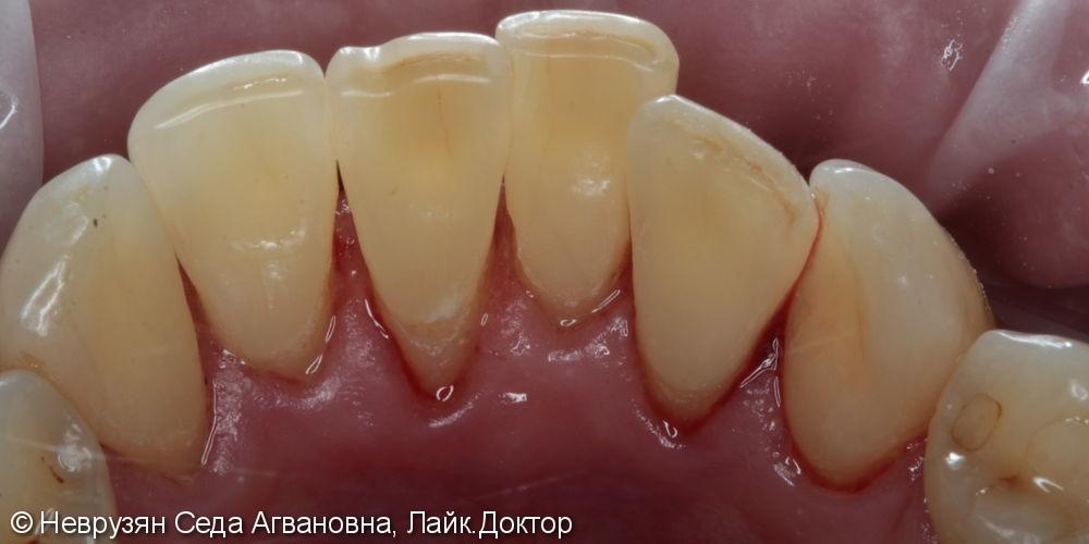 Профессиональная гигиена против коричневого налета на зубах - фото №6