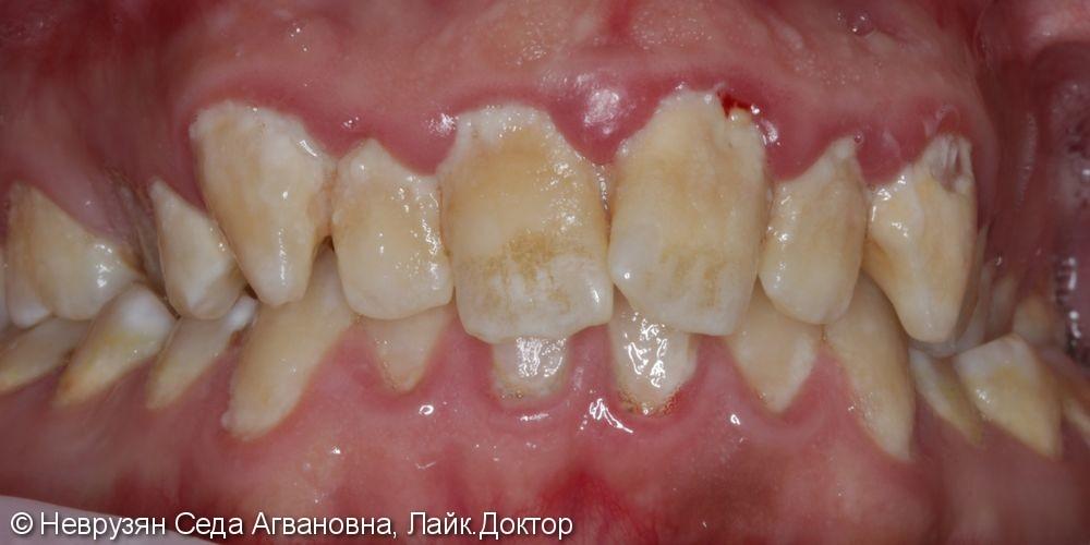 Профессиональная гигиена против коричневого налёта на зубах - фото №1