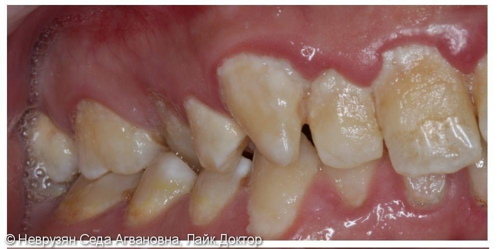 Профессиональная гигиена против коричневого налёта на зубах - фото №3