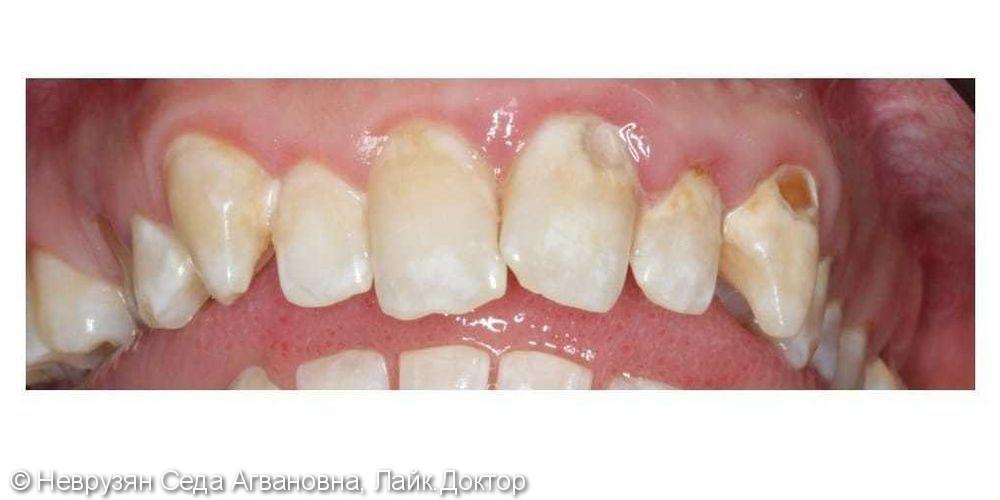 Профессиональная гигиена против коричневого налёта на зубах - фото №5