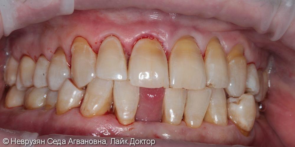 Профессиональная гигиена полости рта - фото №4