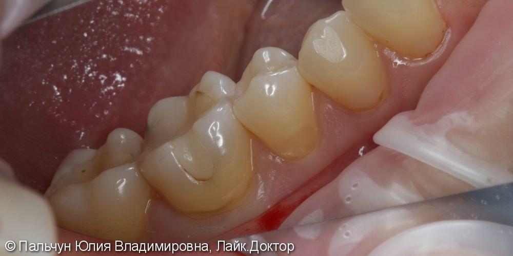 Лечение кариеса - фото №1
