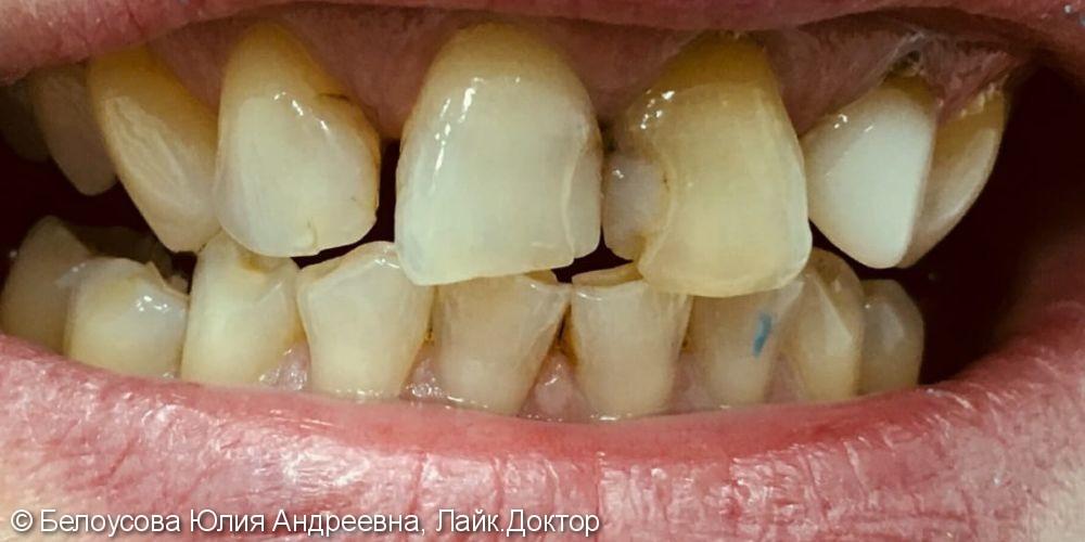 Лечение кариеса, протезирование - фото №1