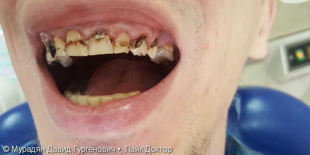 Лечение с помощью пломбы Tetric Evo Ceram - фото №1