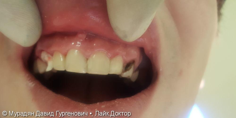 Лечение с помощью пломбы Tetric Evo Ceram - фото №3