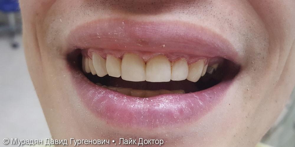 Лечение с помощью пломбы Tetric Evo Ceram - фото №5