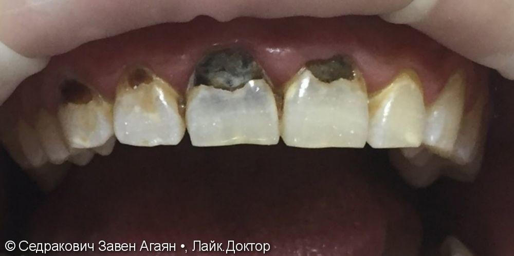 лечения осложнения кариесов на фронтальных зубах на Верхней челюсти - фото №1