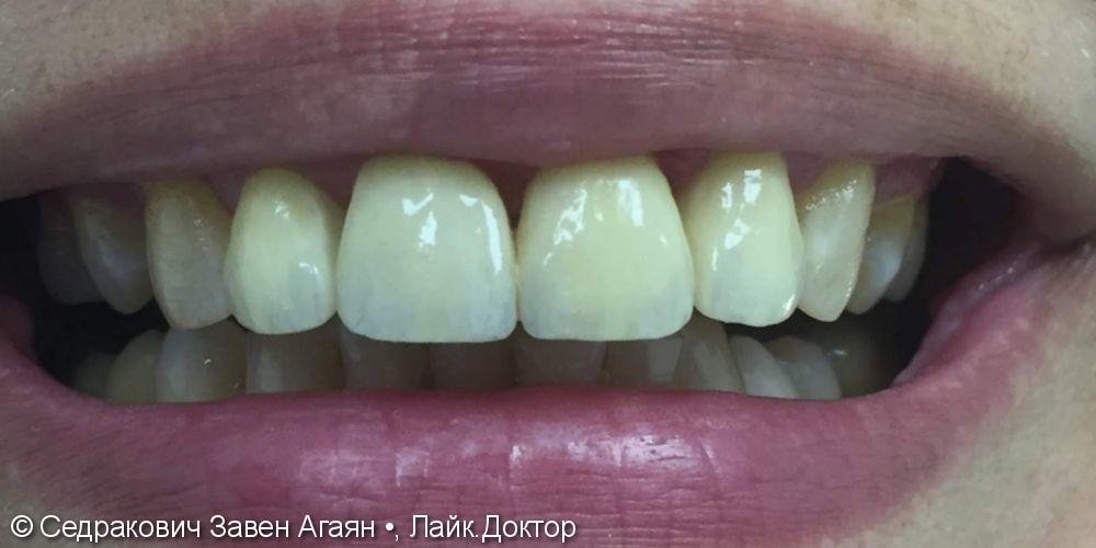 лечения осложнения кариесов на фронтальных зубах на Верхней челюсти - фото №2