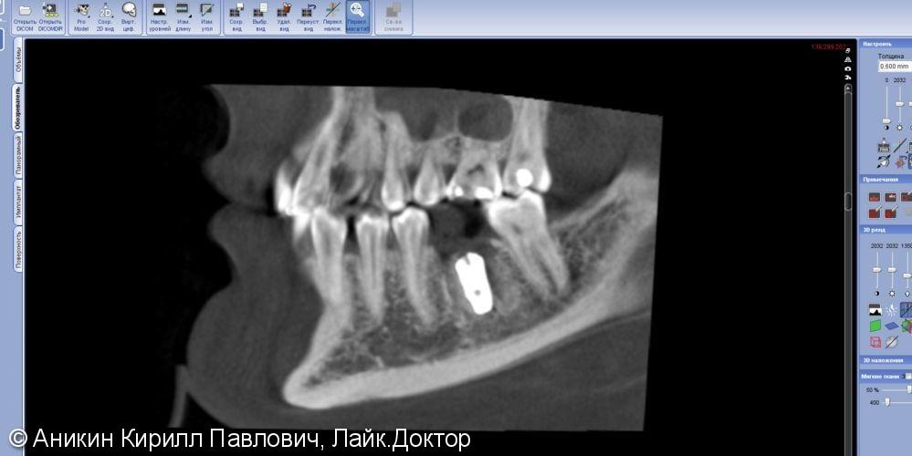 Установка импланта одномоментно с удалением - фото №2