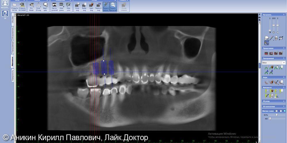 Операция имплантации - фото №1