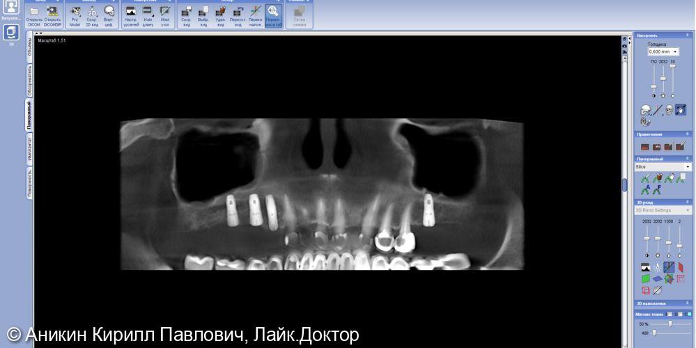 Операция имплантации - фото №2