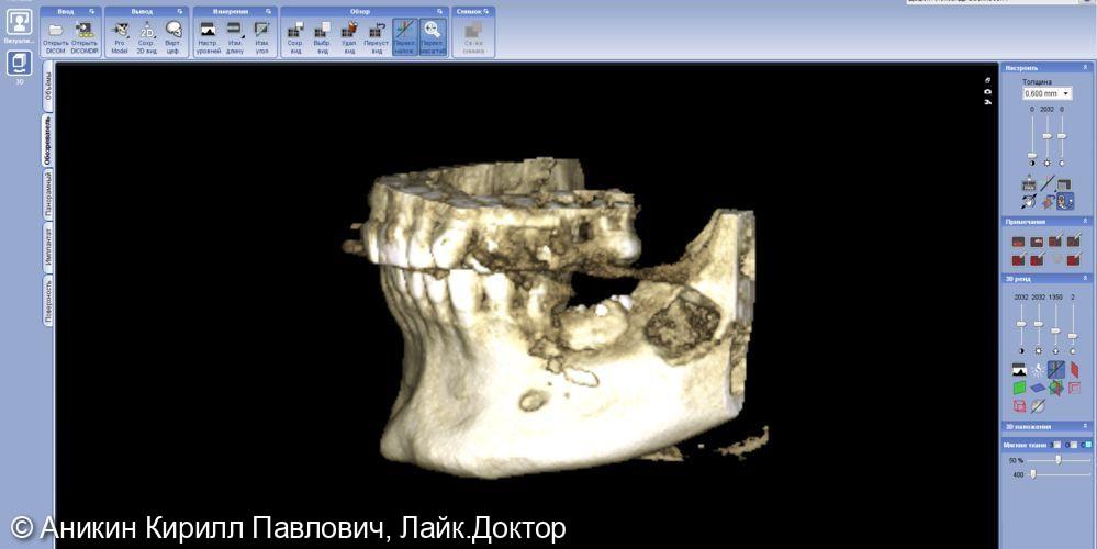 Костная пластика путем трансплантации костного блока - фото №5