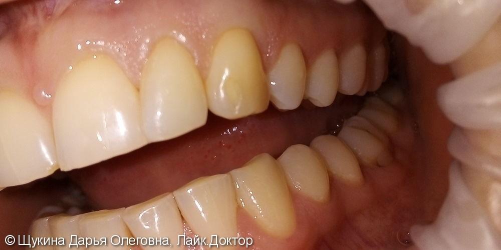 Лечение кариеса 23 зуба - фото №1