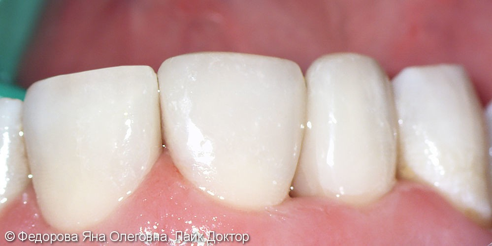 Лечение кариеса с использованием светоотверждаемых композитных пломб последнего поколения - фото №2