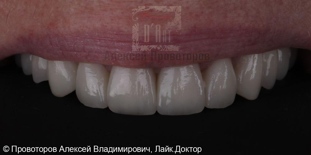 Тотальная реабилитация полости рта - фото №11
