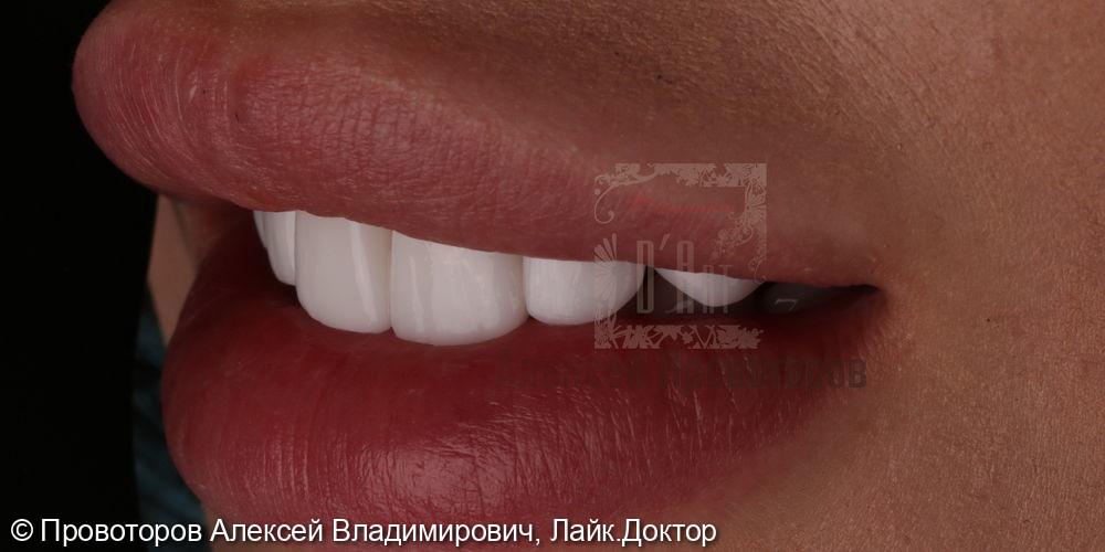 Керамические виниры - фото №10
