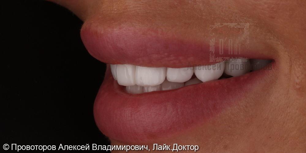 Комплексное лечение и эстетическая реабилитация - фото №16