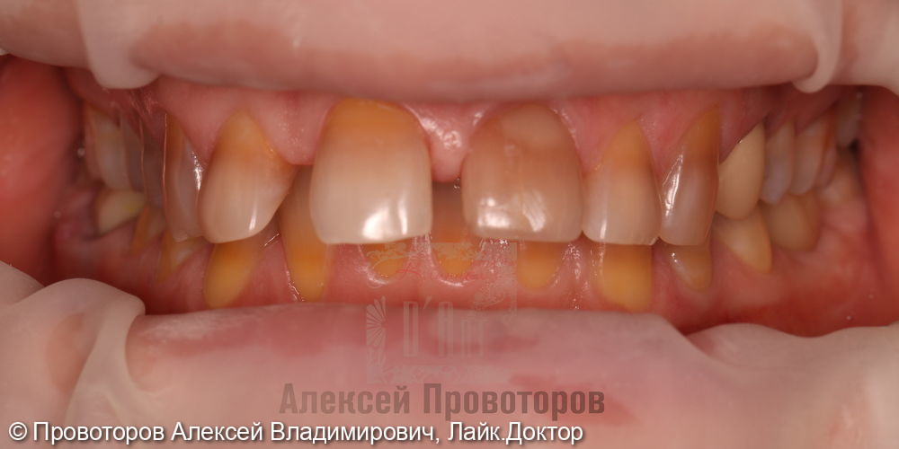 Сложное ортодонтическое лечение - фото №1
