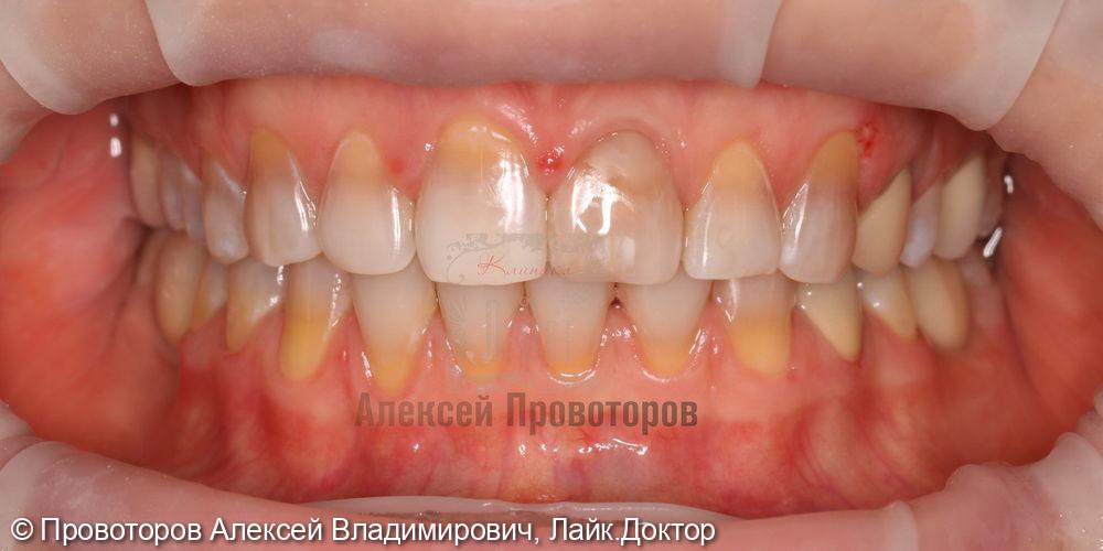 Сложное ортодонтическое лечение - фото №11