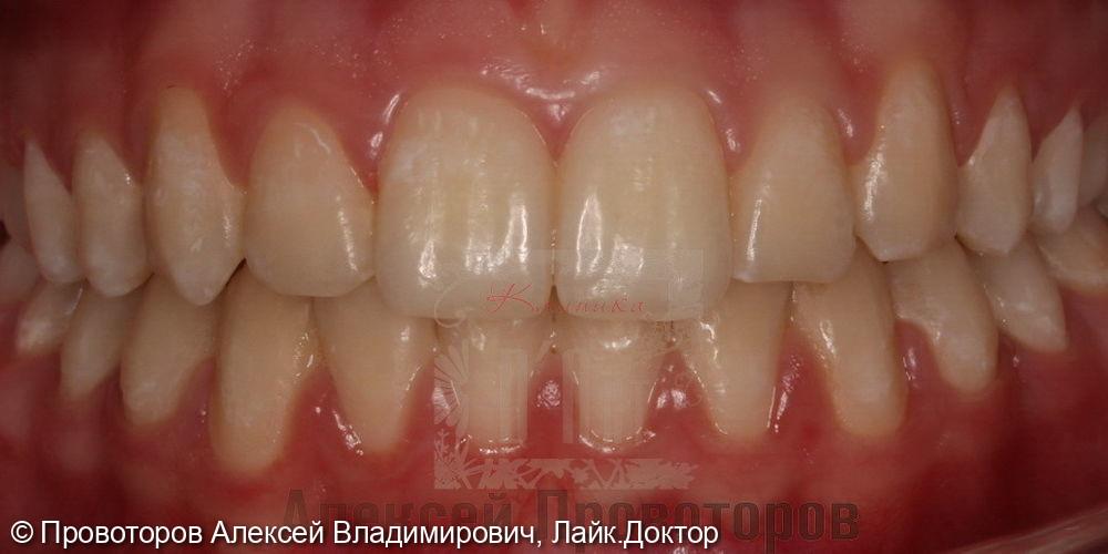 Ортодонтическое лечение - фото №10