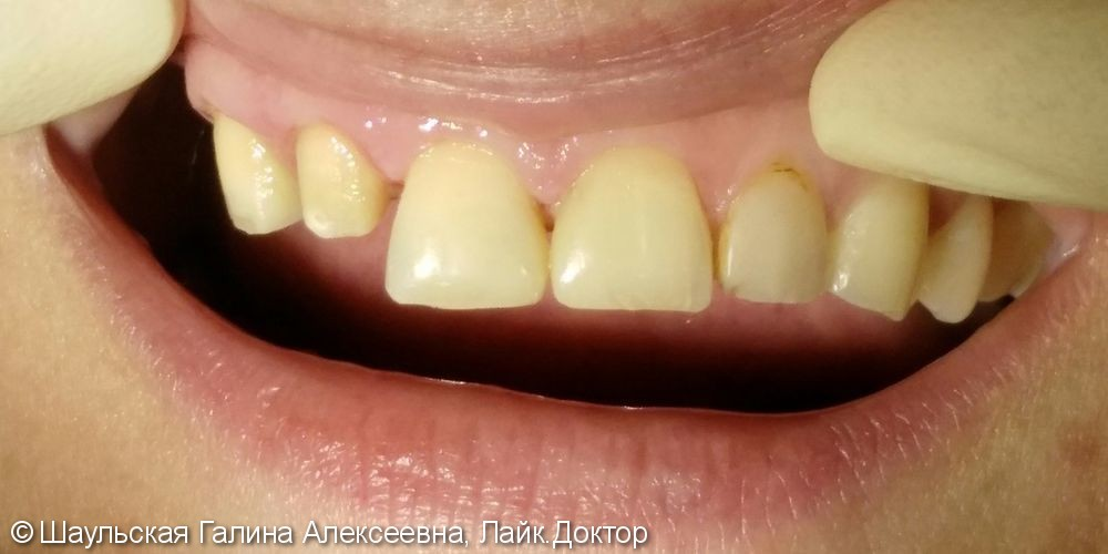 Комплексное лечение 21 и 11 зубов, до и после - фото №4